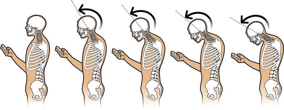 Problems associated with bending the neck when using mobile phone