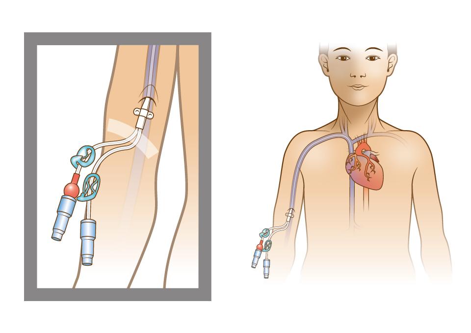Cancer procedure illustration
