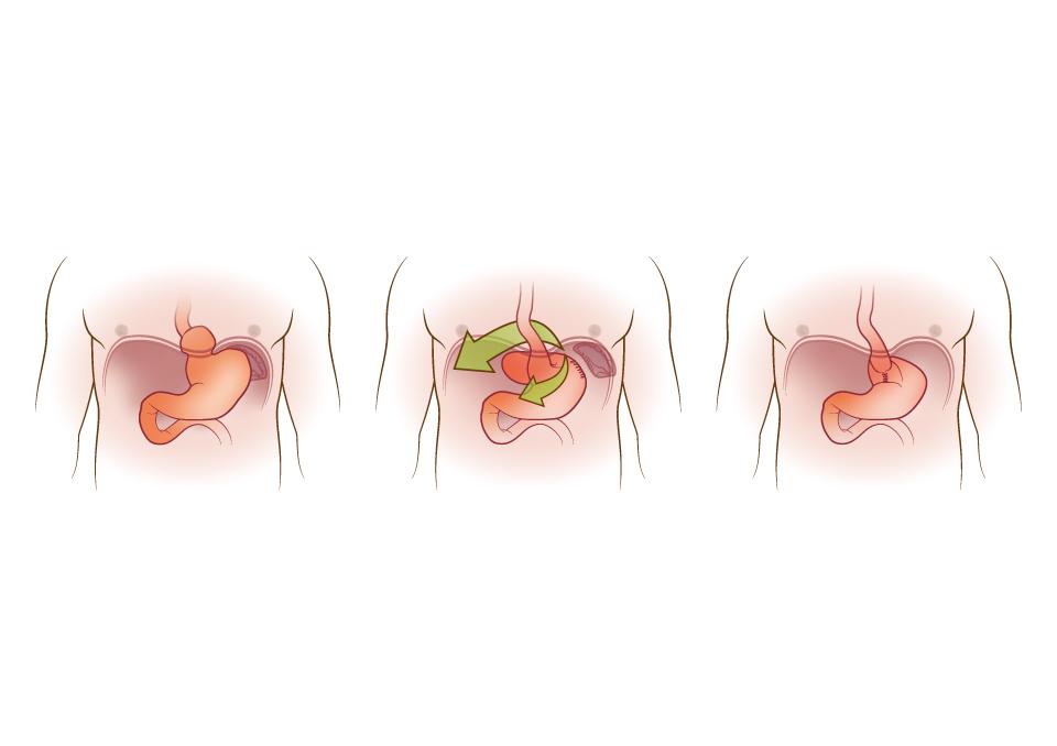 Hiatus hernia removal illustration